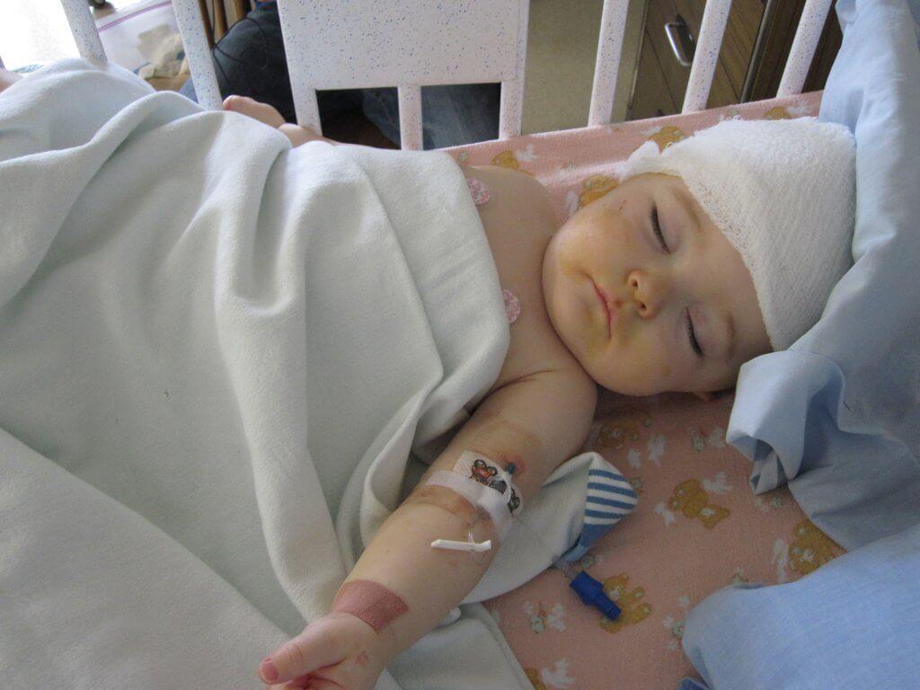 ten years after surgery: SAGITTAL CRANIOSYNOSTOSIS